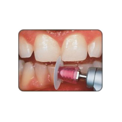 Shofu Dental Corp L522 Super-Snap Disks Finishing