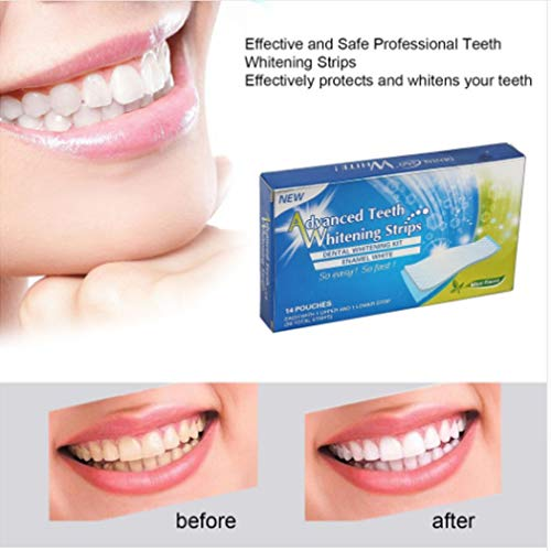 Wen XinRong 3D White Teeth Whitening Strips, Teeth Whitening Professional White Set - 14 Packs of 28 Pieces - no Powder or Gel Required by Wen XinRong