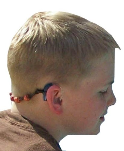 Cochlear Ear Implant - 8