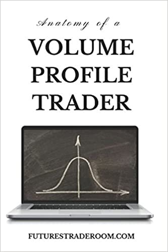 Amazon com: Anatomy of a Volume Profile Trader: Learn tips and
