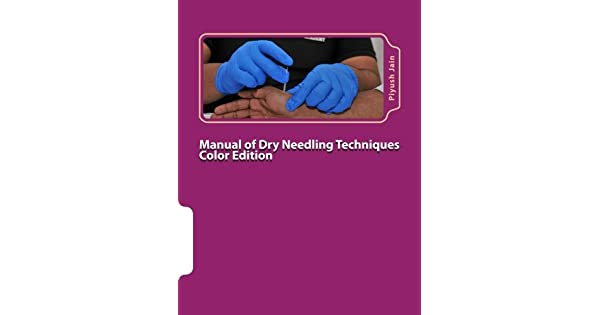 Manual of dry needling techniques color edition livros na amazon manual of dry needling techniques color edition livros na amazon brasil 9781530431236 fandeluxe Images