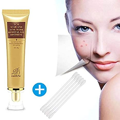 Skin Scar Removal Cream,Skin Acne Repair Face Cream Acne Spot Acne Treatment Pimple Scar Repair (Yellow, one Size) Promisen