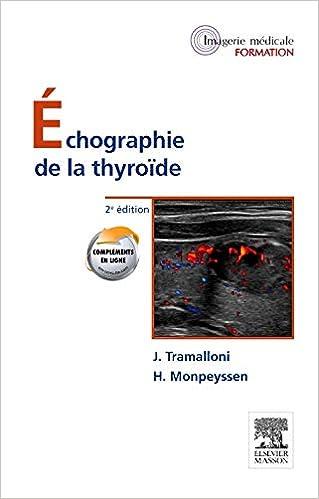 Amazon Fr Echographie De La Thyroide Tramalloni Jean Monpeyssen Herve Livres