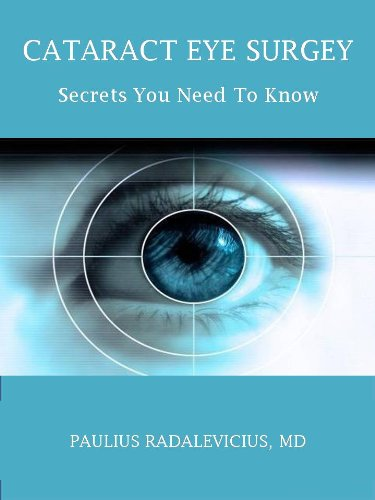 CATARACT EYE SURGERY: SECRETS YOU NEED TO KNOW: A Patients Guide to Safe CATARACT Eye Surgery