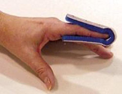 SPECIAL PACK OF 3-Fold Over Finger Splint Small Bulk PK/6 Non-Retail by Marble Medical