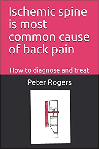 amazon ischemic spine is most common cause of back pain how to