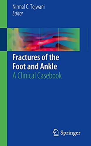 The foot ebook ebook by rock g array amazon com fractures of the foot and ankle a clinical casebook rh amazon com fandeluxe Gallery