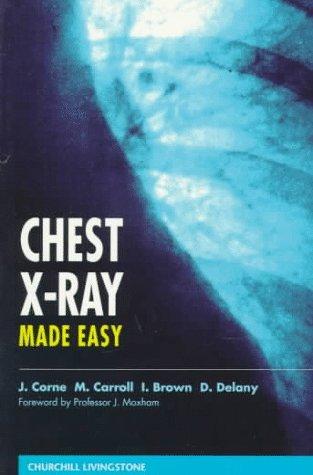 chest x-ray made easy 3e pdf