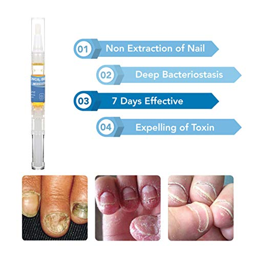 Arishine Fungus Treatment, Fungus Stop, Anti Fungus Nail Treatment, Effective Against Nail Fungus, Anti Fungal Nail Solution, Toenails and Fingernails Solution (2 Pack)