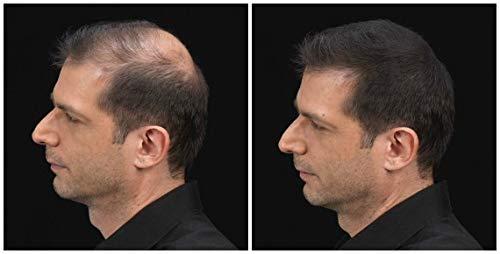 K-Max Recargas 50 gramos CASTAÑO OSCURO Polvo de cabello voluminizador 100% Natural KMax