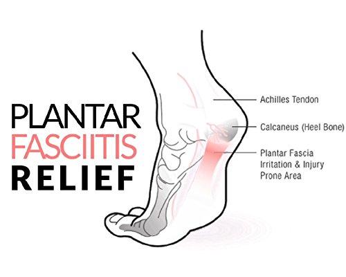 Micro Ortesis - Plantillas para Tratamiento Efectivo de Fascitis Plantar: Amazon.es: Salud y cuidado personal