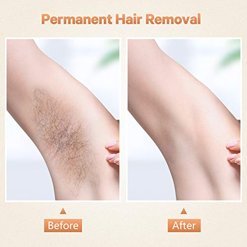 At Home IPL Hair Removal for Women And Men Permanent Laser hair elimination Upgraded to 999,999 Flashes Painless Hair Remover Device for Facial Legs Arms Whole Body