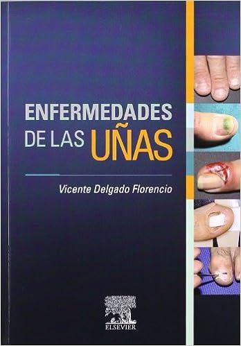Enfermedades De Las Uñas Vicente Delgado Florencio