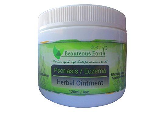 Les moyens réels du psoriasis