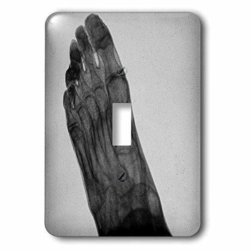 Scenes from the Past Magic Lantern - Vintage Xray Human Foot Scientific Medical Study Magic Lantern 1910 - Light Switch Covers - single toggle switch (lsp_246343_1) by 3dRose