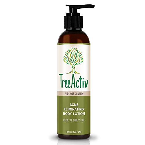 TreeActiv Acne Eliminating Body Lotion 8 fl oz | Clears Body, Back, Butt and Shoulder Acne | Anti-Acne Moisturizer | Prevents Future Breakouts | Green Tea and Honey ()