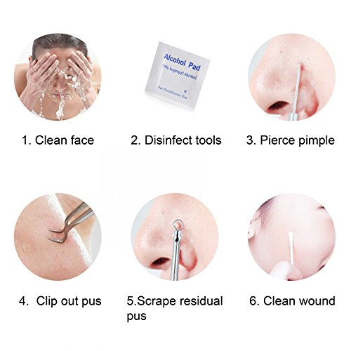 FIXBODY Blackhead and Splinter Remover Tools - Stainless Steel Professional Easily Cure Pimples Whiteheads Comedones Acne Zit Ingrown Hairs and Facial Impurities Bend Head Tweezer Surgical Kit