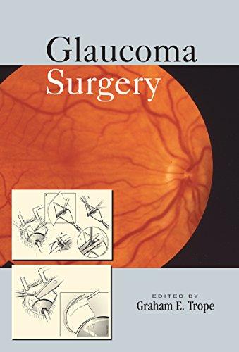 Glaucoma Surgery - Graham Flap