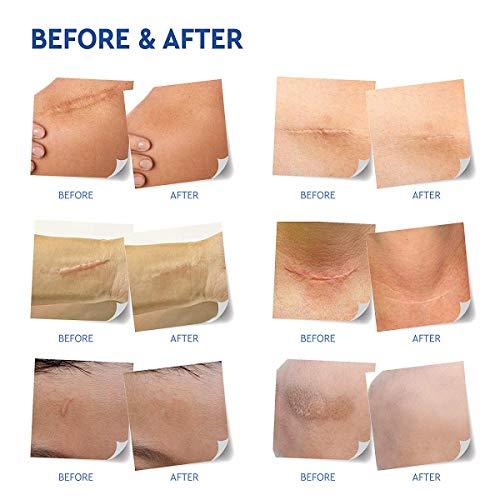 Medical Grade Silicone Scar Removal Sheets by Tatyana Naturals 7Pcs Reusable HighPerformance Scar