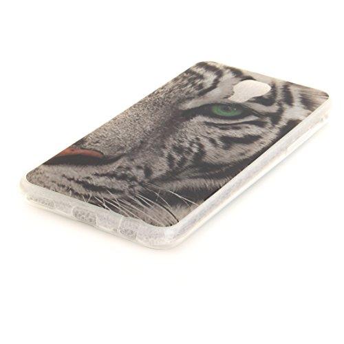 Hozor Scratch Slim Cas De Souple Téléphone En Transparent X leopard Résistant TPU Antichoc Arrière Fit Motif Protection Cas Silicone Couverture Screen LG Bord De Peint rZfnt7Urx