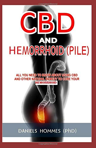 CBD AND HEMORRHOID (PILE): All You Need To Know About Using CBD And Other Natural Remedy To Cure Your Hemorrhoid