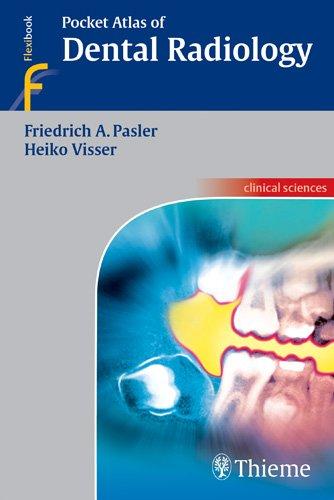 Pocket Atlas of Dental Radiology PDF