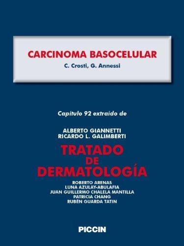 Descargar Libro Capítulo 92 Extraído De Tratado De Dermatología - Carcinoma Basocelular A.giannetti