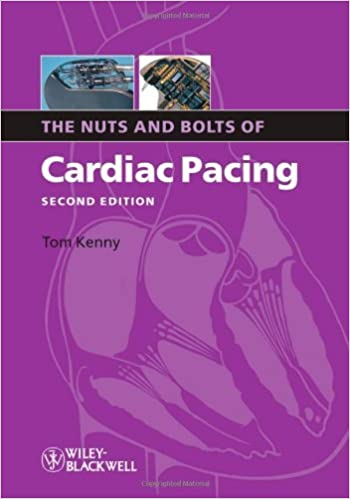 By Tom Kenny - The Nuts and Bolts of Cardiac Pacing: 2nd (second) Edition