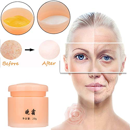 Birdfly Repair Face Freckle Spots Treatment Blackhead Whitening Acne Scar Removal Skin Cream 30ml (B) ()