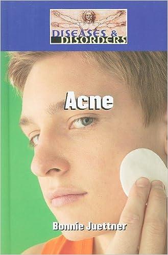 Acne (Diseases & Disorders)