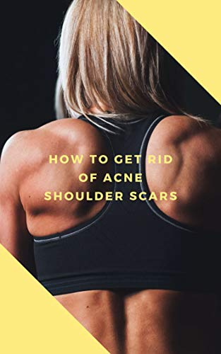 How to Get Rid of Acne Scars on Shoulders For Good (Get Rid Of Acne Scars For Good)