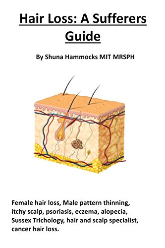 Hair Loss: A Sufferers Guide: Female hair loss, male pattern thinning, itchy scalp, psoriasis, eczema, alopecia, Sussex Trichology, hair and scalp specialist, cancer hair loss