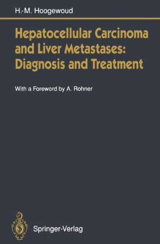 Hepatocellular Carcinoma Liver (Hepatocellular Carcinoma and Liver Metastases: Diagnosis and Treatment)
