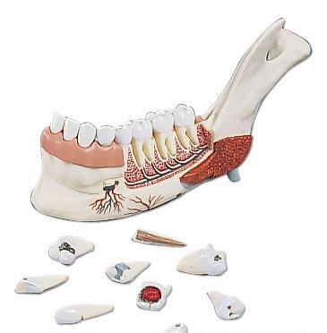 特別オファー 3B社 (ve290) 歯口腔模型 3B社 下顎3倍大19分解モデル(蝕歯付) B003Z2TREU (ve290) B003Z2TREU, ティーエスパーツ:d8045b9f --- a0267596.xsph.ru