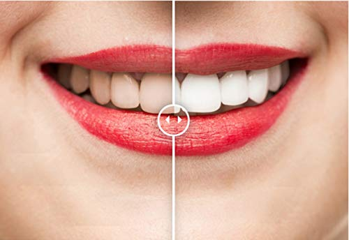 Advanced Teeth Whitening Strips for Bright White Smile in Days - Upper/Lower Teeth Whiten Strips with Mint Tooth Whitening Gel for a Perfect Smile - 7-Day At Home Teeth Whitening Oral Care Kit