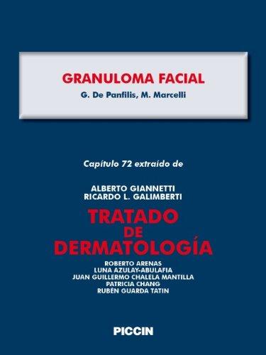 Descargar Libro Capítulo 72 Extraído De Tratado De Dermatología - Granuloma Facial A.giannetti