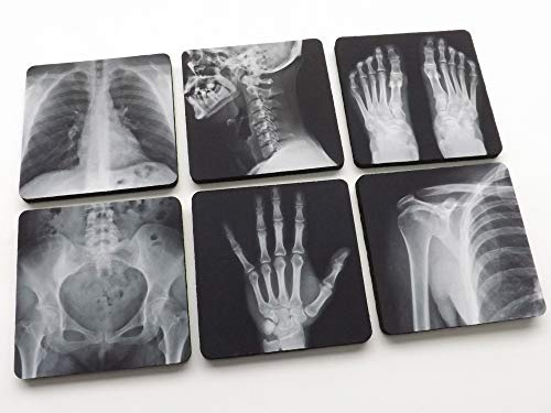 (Radiology Coasters set of 4 or 6 xray radiologist graduation gift doctor)