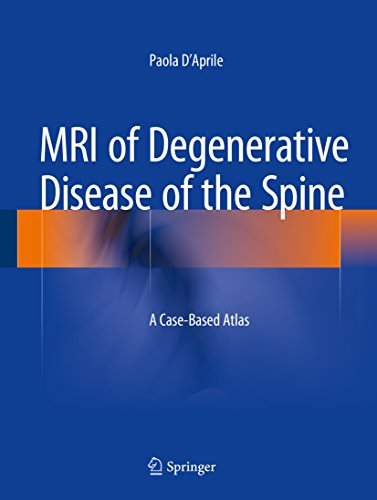MRI of Degenerative Disease of the Spine: A Case-Based Atlas Pdf