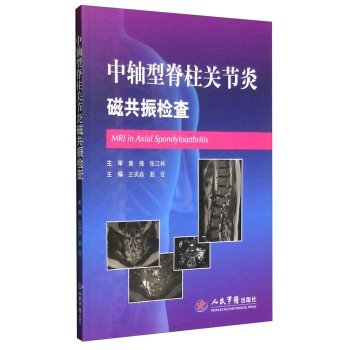 Download MRI for axial spondyloarthritis(Chinese Edition) PDF