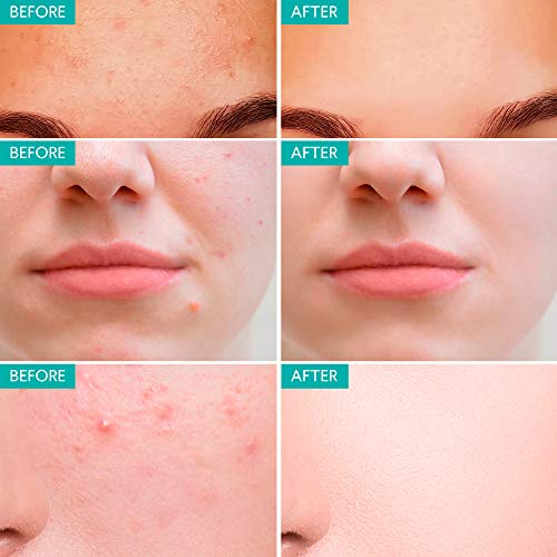Acne Spot Treatment for Acne Prone Skin - Treats Cystic Acne, Advanced Acne Removal, Fast-Acting, Pimple Repair with Tea… 7