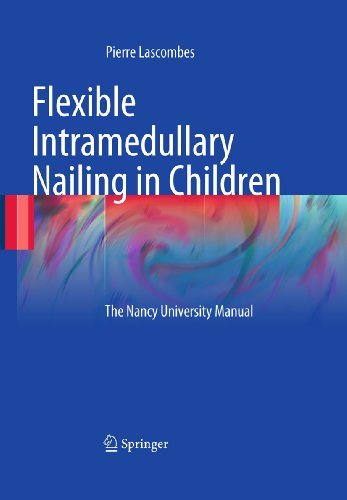 Download Flexible Intramedullary Nailing in Children: The Nancy University Manual Pdf