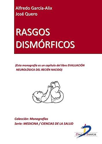 Rasgos dismórficos (Capítulo del libro Evaluación neurológica del ...