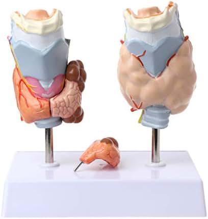 lipiny Human Anatomy Model Human Thyroid Anatomical Pathology Model Normal and Disease Pathologies Medical Teaching Resource Tool Structural Anatomy Medical Teaching Learning Tool