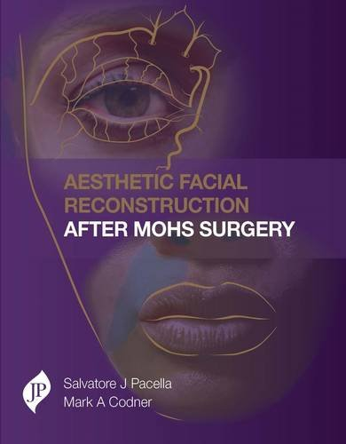 Aesthetic Facial Reconstruction After Mohs Surgery