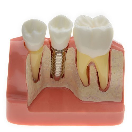 AZDENT Dental Model Implant Analysis Crown Bridge Demonstration Teeth Model for Education