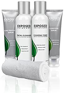 Exposed Basic 4-Step Acne Treatment Kit (60 Day) Exclusively by Exposed Skin Care for All Severities of Acne and Oily Skin (Cleanser, Toner, Dual Treatment Serums)