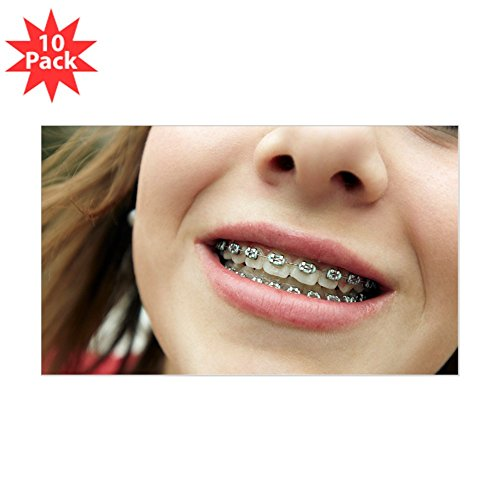 How to buy the best fake braces? | Ysol info
