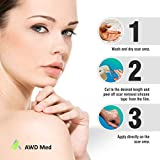 AWD Medical Grade Soft Silicone Gel Tape for Scar