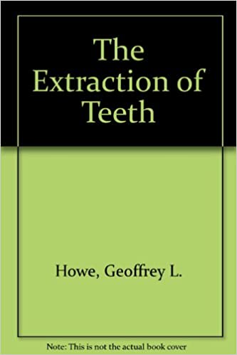 The Extraction Of Teeth Howe Geoffrey L 9780723605621 Amazon Com Books