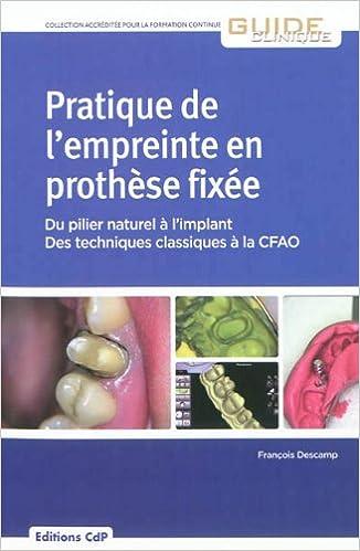 Livre Pratique de l'empreinte en prothèse fixée : Du pilier naturel à l'implant, des techniques classiques à la CFAO pdf, epub ebook